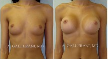 Breast Augmentation - Patient J