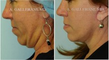 Neck Lift - Patient D