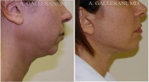Neck Lift - Patient C