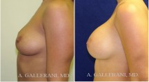 Breast Augmentation - Patient C