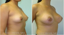 Breast Augmentation - Patient D
