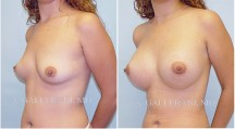 Breast Augmentation - Patient G