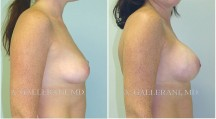 Breast Augmentation - Patient H