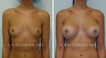 Breast Augmentation - Patient K