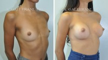 Breast Augmentation - Patient L