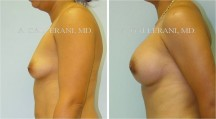 Breast Augmentation - Patient F