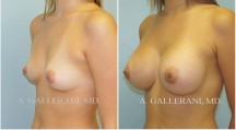 Breast Augmentation - Patient A