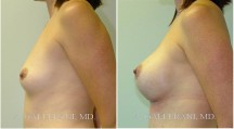 Breast Augmentation - Patient E
